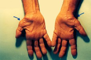 Rehabilitacja - Rydułtowy - Cieśń nadgarstka