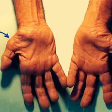 Zespół cieśni nadgarstka – rehabilitacja w Rydułtowach